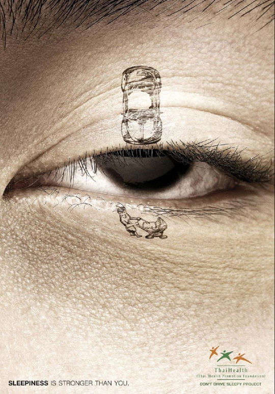 Print Ad - Droopy Eye Accident